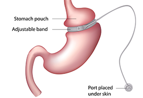 Adjustable-Gastric-Band