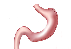 Gastric-Plication